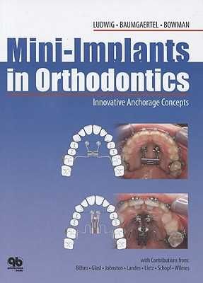Mini-Implants in Orthodontics: Innovative Anchorage Concepts - Ludwig, Bjorn, and Baumgaertel, Sebastian, and Bohm, Bernhard