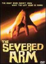 The Severed Arm - Thomas S. Alderman